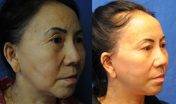Total Face Rejuvenation