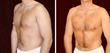 Plastic surgery: Gynecomastia Before and After