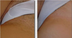 Panim Yaffot Salon at 718 851-8140 proves that laser hair removal is far more cost effective than a lifetime of shaving.