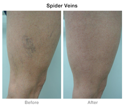Veintec Spider Vein Sclerotherapy Injections Success Story