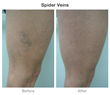 Spider Vein Treatments Allow Patient to Wear Shorts Again Announced...