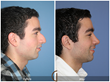 Gallery of Cosmetic Surgery's Board Certified Facial Plastic Surgeon,...
