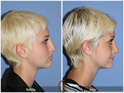 Teenage Rhinoplasty is Already Proving To Be One Of The Most Popular Cosmetic Surgery Trends of This Summer