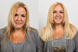 Invisablend New Method For Hair Extension, Volume, and Restoration Now...