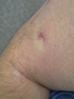 Pictured is the scar left from McGuire's Basal Cell Carcinoma scrape and burn surgery.