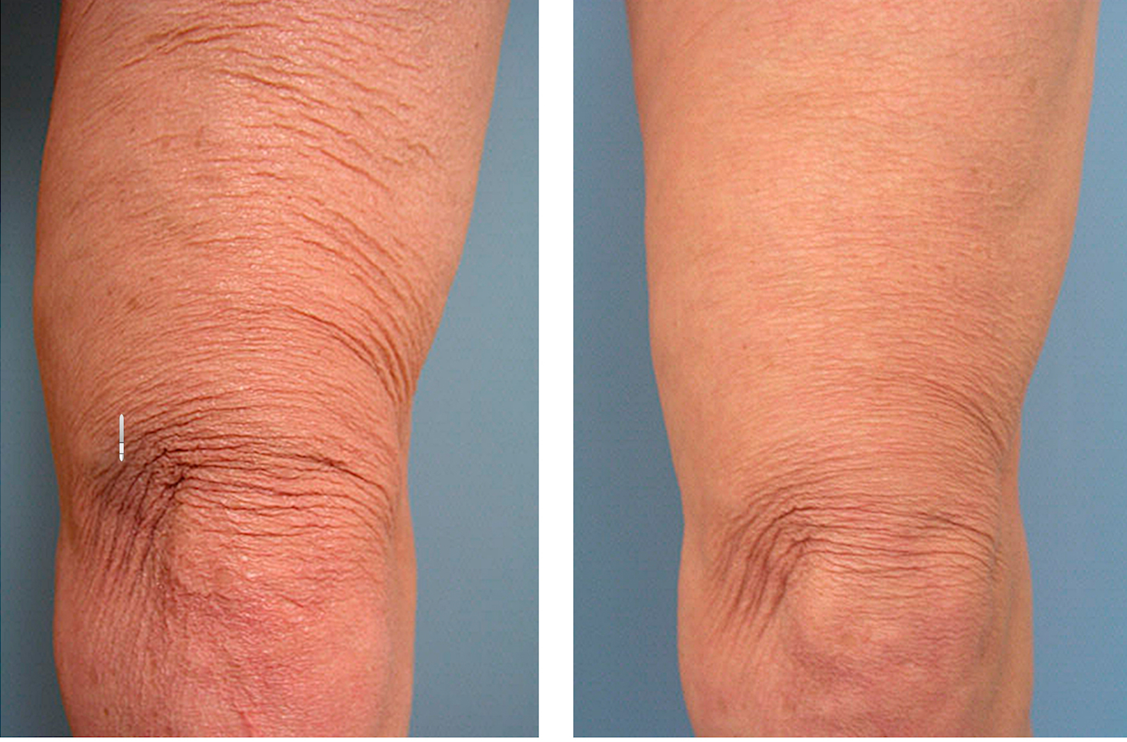 Thermage For Loose Skin And Body Shaping And Exilis Non