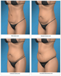 One of the Top Orange County Tummy Tuck Surgeons, Dr. Joseph T....