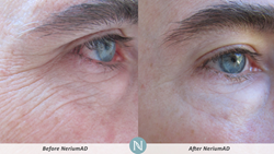 Nerium Reviews