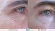 Skin Care Company Now Offers Service to Help Improve the Appearance of Wrinkles For No Charge
