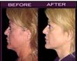 Minimally Invasive Face Lift Alternative with Ground Breaking...