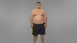 """Extreme Weight Loss"": David's Journey Begins at the University of..."