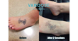 Undo That Tattoo With Vamoose Tattoo Removal