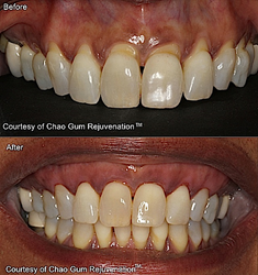 Before-After Chao Pinhole Gum Rejuvenation™