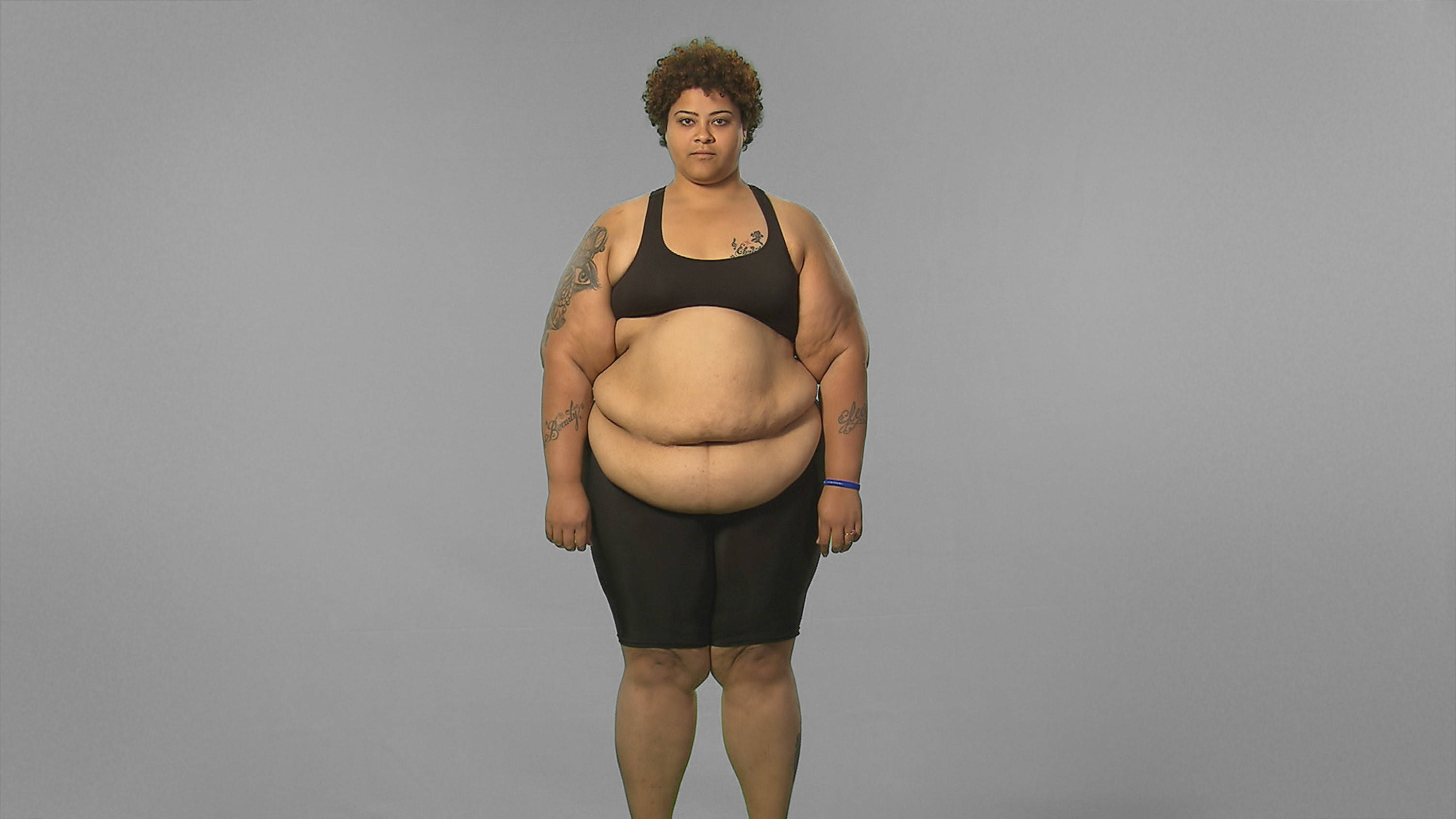 """""""Extreme Weight Loss"""": Brandi's Journey Begins at the ..."""