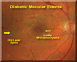 Diabetic Macular Edema is swelling in the central part of the retina.  This leads to blurred central vision and is due to leakage from blood vessels damaged from diabetes