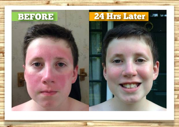 how to help a sunburn heal faster
