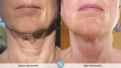 products to tighten neck skin