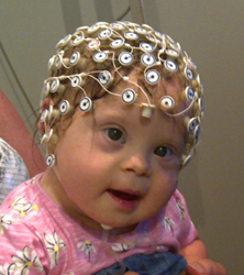 EEG equipment is used during an electrophsysiological assessment of a baby with Down's syndrome at Birkbeck's Babylab