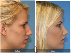 This Summer's Most Popular Cosmetic Nose and Sinus Surgeries