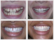 Before - After Patient Results With Six Month Braces at Glenwood Smiles in Raleigh