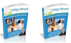 vitiligo miracle book