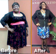 Texas Bariatric Specialists is Thrilled to Announce That Patient No...