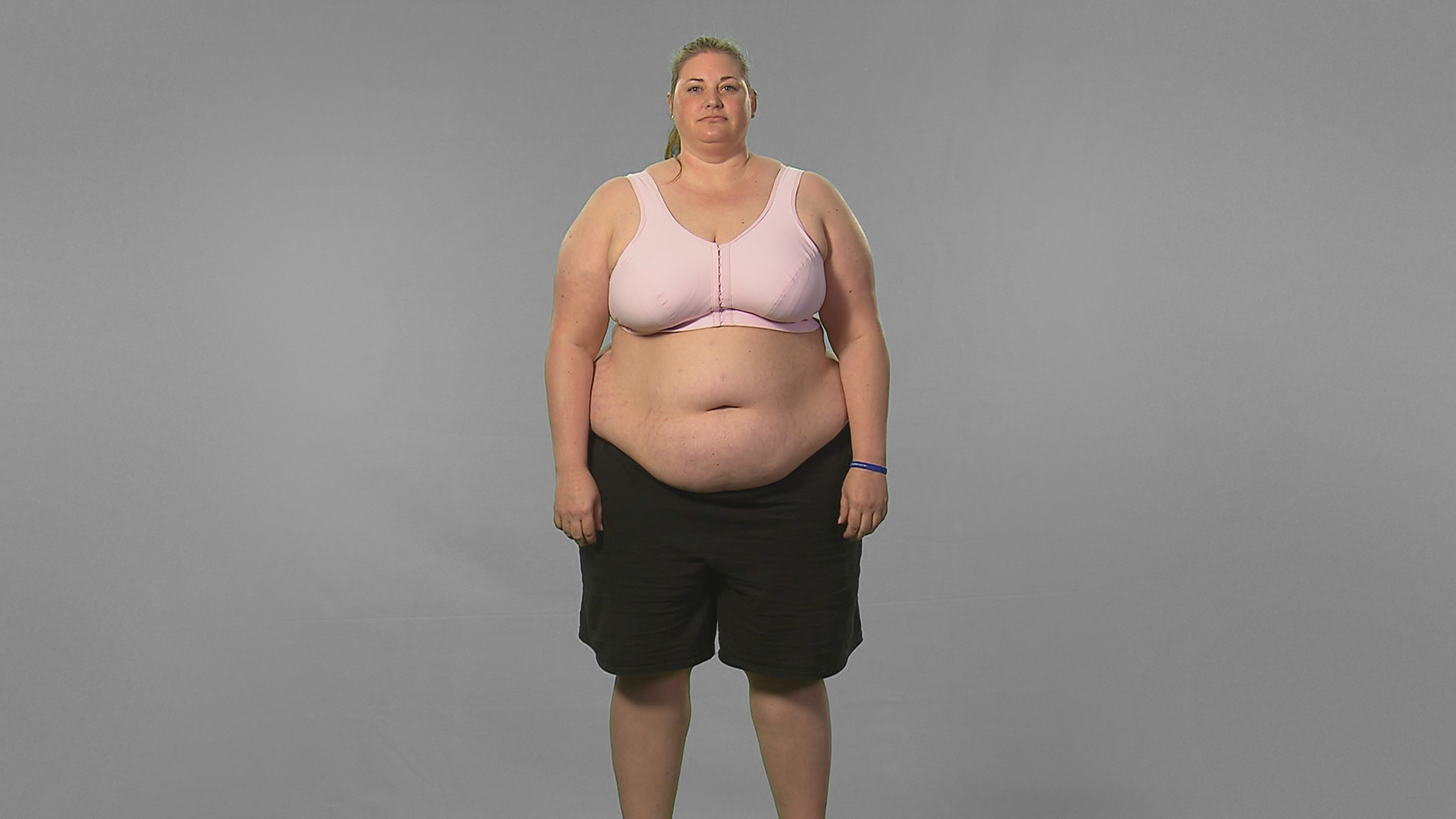 Extreme Weight Loss Cassie S Journey Begins At The University Of