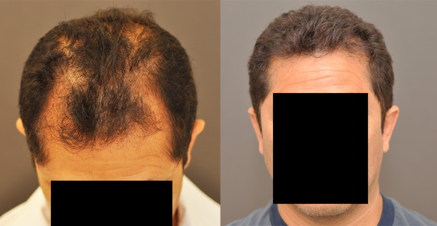 McGrath Medical Now Offers NeoGraft Automated FUE Hair Transplant