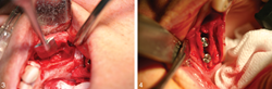 Two intraoperative photographs of the ridge-split procedure