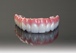 BruxZir® Solid Zirconia Surpasses Five Years of Clinical Use