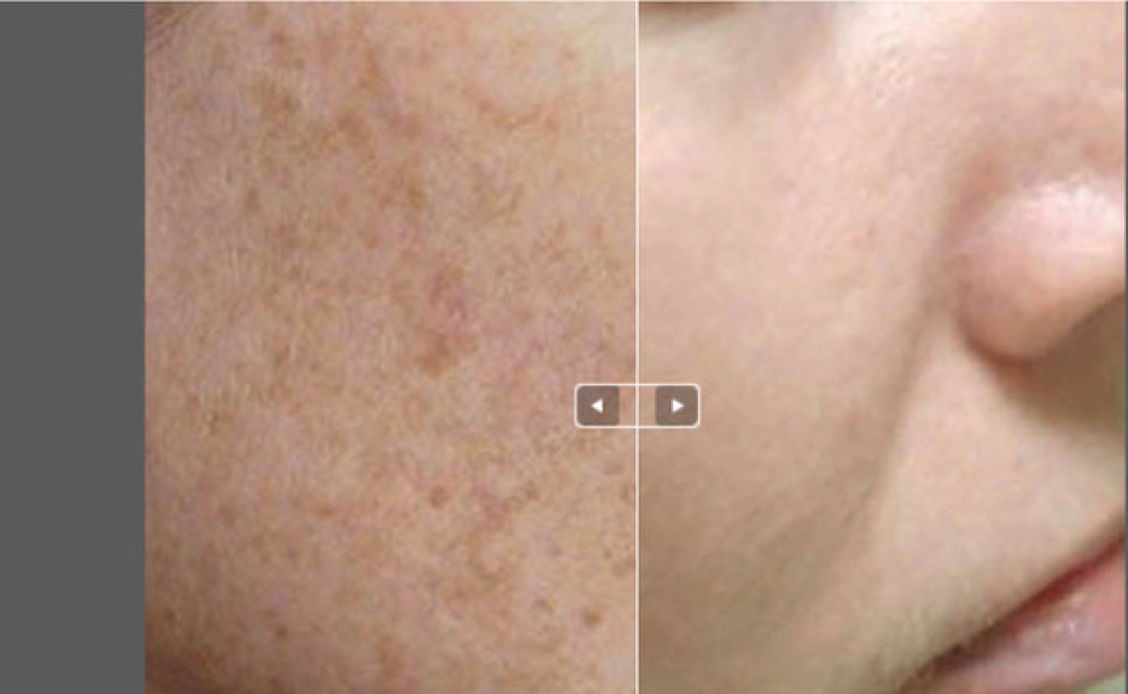 Ethos Spa Skin And Laser Center Adds Fractional Lens Array