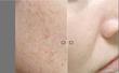 picosure laser,FOCUS lens array,anti-aging treatment,anti-aging laser treatments,
