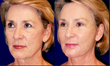 cannula technique,cannula needle,facial fillers,facila rejuvenation,pain-free facial rejuvenation