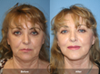 Orange County Facial Plastic Surgeon, Dr. Kevin Sadati, Announces The...