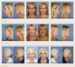 Orange County Facial Plastic Surgeon, Dr. Kevin Sadati, Releases New...