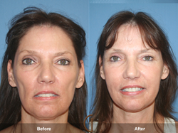 Gallery of Cosmetic Surgery Discusses Fat Grafting Versus Dermal Fillers