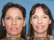 Orange County Facial Plastic Surgeon, Dr. Kevin Sadati, of the Gallery...