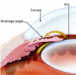 New Glaucoma Treatment (SLT) by Shofner Vision Center
