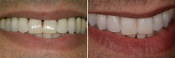 Gum Disease Treatment. This Anacapa Dental Art Institute patient has a big smile and shows all of his teeth. After receiving treatment for gum disease, he was left with big black spaces between his front teeth and was embarrassed about his smile. He was a