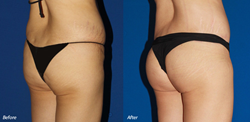 Orange County Brazilian Butt Lift Patient
