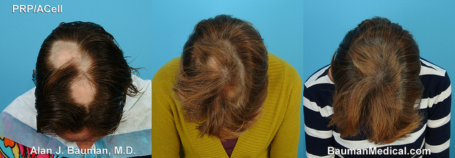 National Hair Loss Awareness Month 5 Consumer Tips