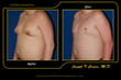 Men Suffering with Severe Gynecomastia in Los Angeles Now Have Access to a Superior Surgical Option for Treating Male Breasts, Announces Cruise Plastic Surgery