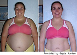 Burn fat lose weight quickly