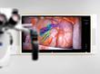 Aspirus Wausau Hospital Announces First Large Scale Digital Operating...