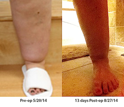 Dr. Greuner's patient Vicki before her first lipedema surgery and two weeks post-op.