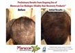 New All Natural, Organic Hair Recovery Products by Moroccan...