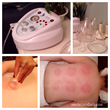 Cupping Massage Now Available at Botanica Day Spa in Clearwater, FL