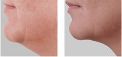 treatment to lose fat on neck
