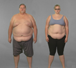 """""""Extreme Weight Loss"""": Jeff and Juliana's Journey begin at the..."""