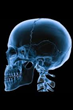 DePuy Synthes Craniomaxillofacial Distraction System Recalled (Class...